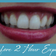 My Obsession With Pearly Whites:  Crest 3D Whitestrips 2 Hour Express Review