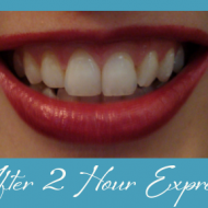 Crest 3D Whitestrips 2 Hour Express Review + Giveaway {CLOSED}
